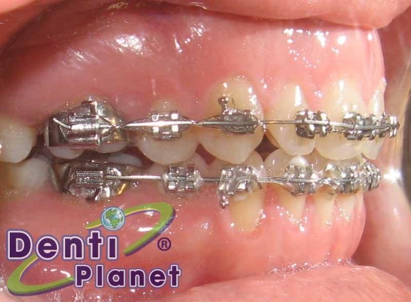 Blog ortodoncia dentiplanet puedo usar brackets si estoy for W de porter ortodoncia