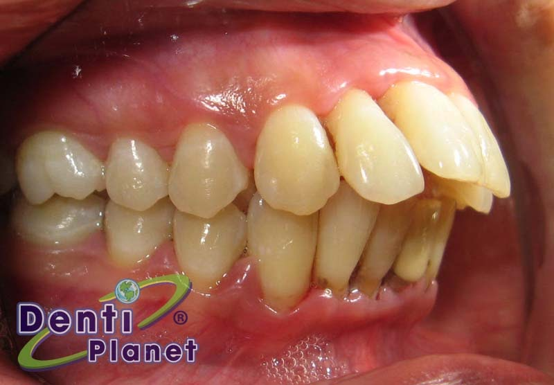 Blog ortodoncia dentiplanet puedo colocarme brackets si for W de porter ortodoncia