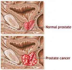 kanker prostat image