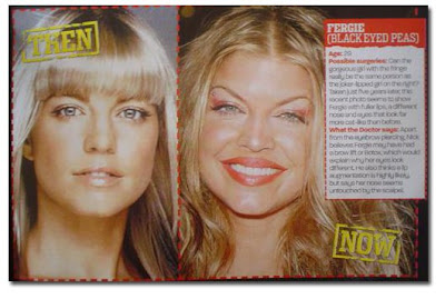 Fergie Plastic surgery- Black eyed peas