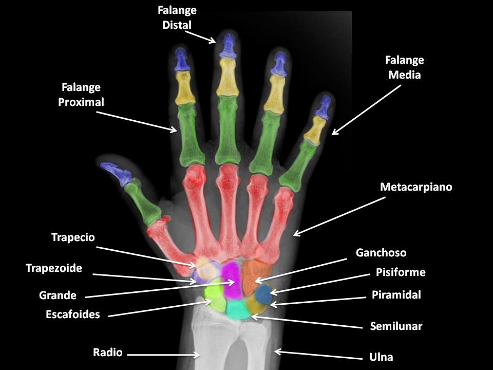 Fantástico Muñeca Radiografía Anatomía Imagen - Anatomía de Las ...