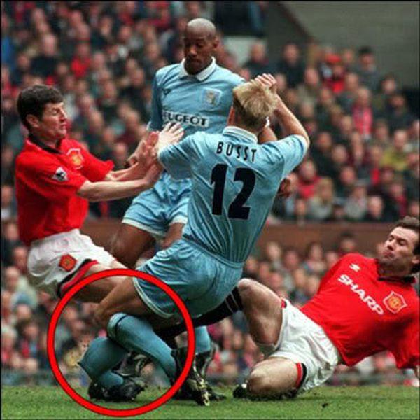 Horrible_sports_injuries__2