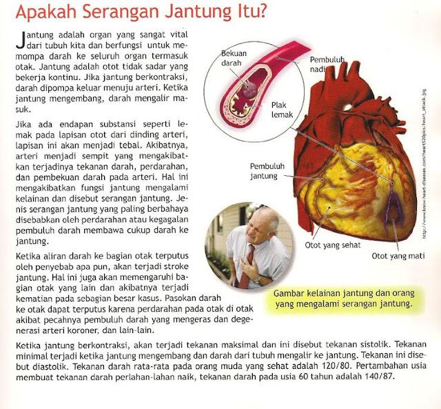 [Serangan+jantung.jpg]