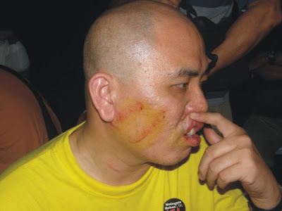State assemblyman, Lau, was allegedly punched twice on the face and hauled away by the police.