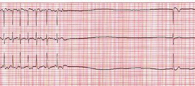 adenosine-heart-pause
