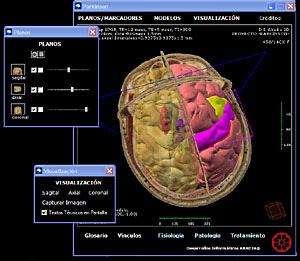 external image Im%C3%A1genes+cedidas+por+el+Grupo+UCB..jpg
