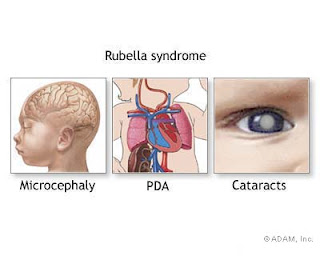 Rubella Influence to Fetus