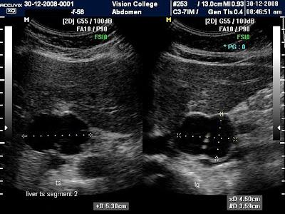 bad gallbladder symptoms female