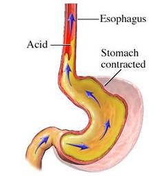 Acid Reflux Diarrhea Flatulence