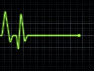 EKG_Flatline.jpg
