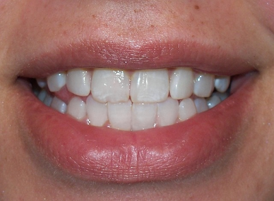 Whitening Results