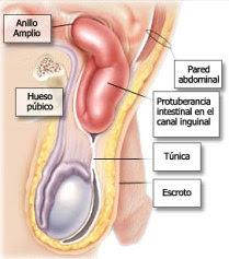 hernias en la ingle: