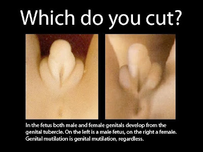 Women Genital Mutilation Pictures