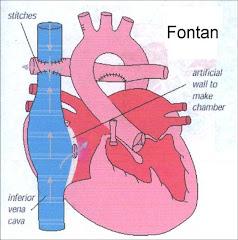 The Fontan