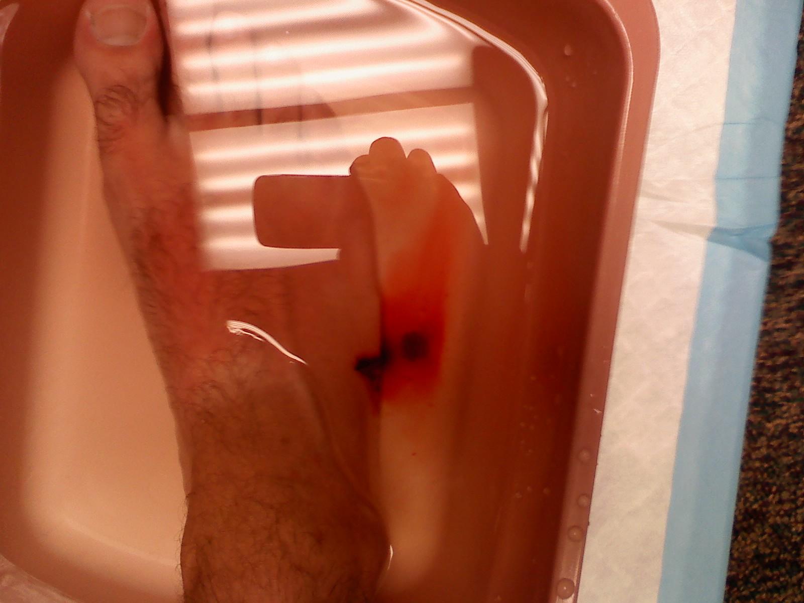http://1.bp.blogspot.com/_XP41-Wdtfp4/TGluZ8iy60I/AAAAAAAAC5o/wcQm-ZQgnzU/s1600/sting+ray+8-10-2010.jpg