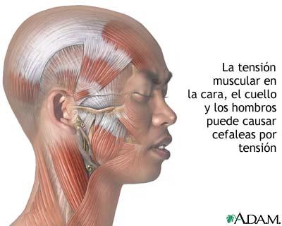 Dolores de cabeza tensionales: cómo curarlos...