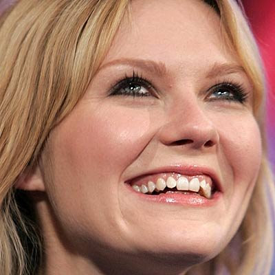 celebrities with bad teeth now that s nifty