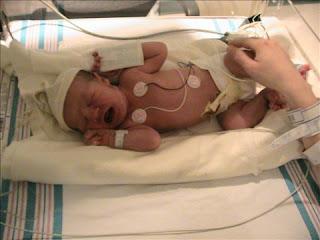 birth story NICU newborn in hospital