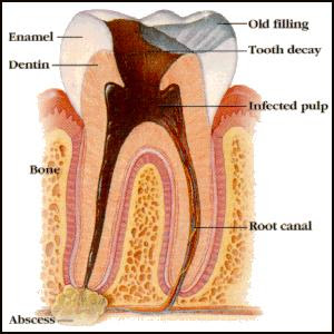 Tooth Abscess Toward Critical Stage