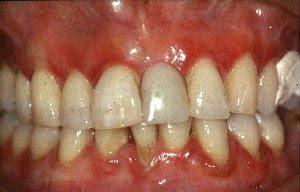 http://1.bp.blogspot.com/_YCkZLZGUwko/SuNFrVx6LuI/AAAAAAAAAEw/fOvmC_1Tyto/s320/gingivitis.jpg