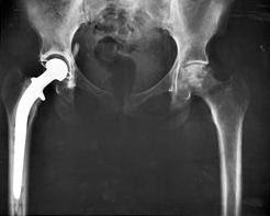 Total hip replacement surgery X-ray showing implant
