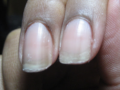 Growing Out A Damaged Nail