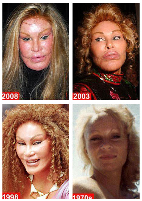 Cat Woman Plastic Surgery Before and After