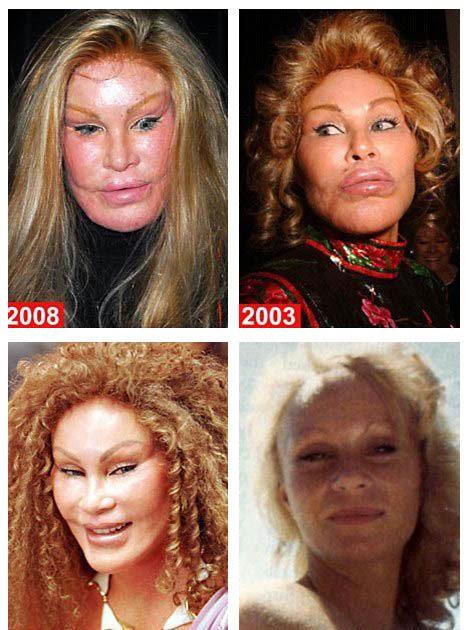 'Catwoman' Jocelyn Wildenstein denies plastic surgery ...