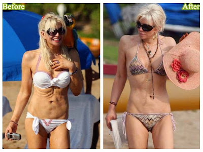 Courtney Stodden Before And After Plastic Surgery Wallpaper 8 Of 10 on 2011 challenger srt8 392