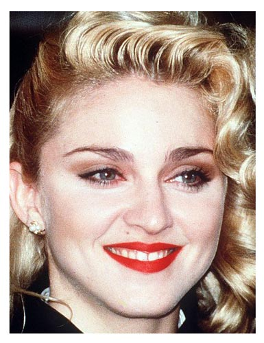 Madonna before plastic surgery? (image hosted by plasticsurgerybeforeandafter.blogspot.com)