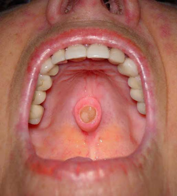 Good Mouth Cancer. Oral Cancer