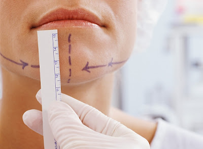 Chin Augmentation Surgery