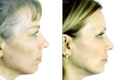 Chin Augmentation Before And After Picture