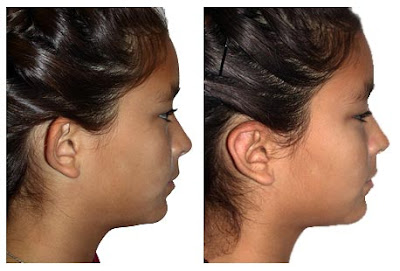 Otoplasty Before After