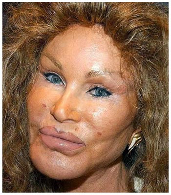 Blepharoplasty Gone Wrong. Joan Van Ark Bad Nose Job
