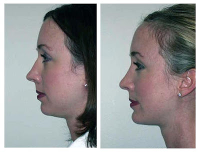 Chin Augmentation Photos