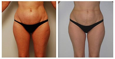Mesotherapy Before And After