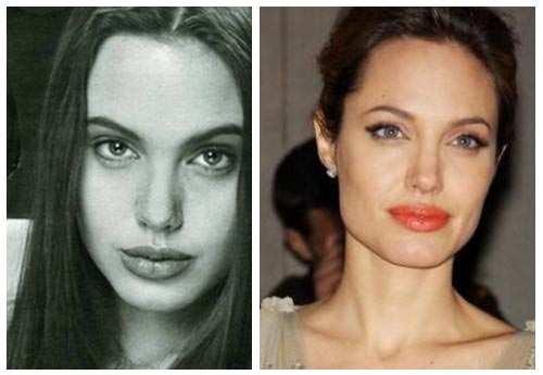 lady gaga nose job photos. Angelina Jolie Nose Job