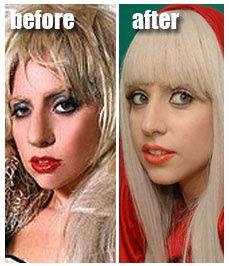Lady Gaga Plastic Surgery