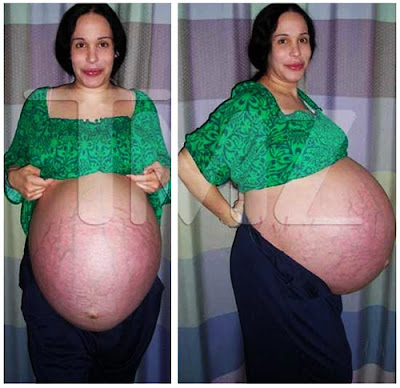 Octomom Before After