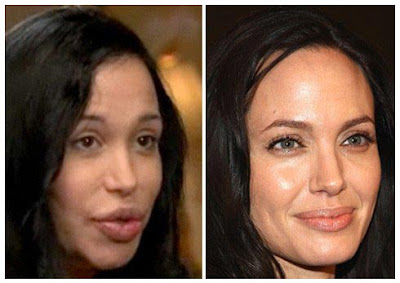 Nadya Suleman And Plastic Surgery
