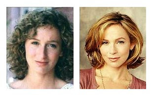 Jennifer Grey Nose Job Before & After