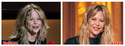 Meg Ryan Plastic Surgery Before After