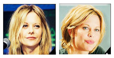 Meg Ryan Plastic Surgery Disaster