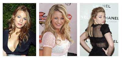 Blake Lively  on Blake Lively Nose Job Before And After
