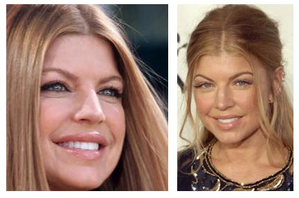 Fergie Before Plastic Surgery