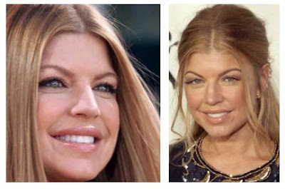 Fergie After Plastic Surgery