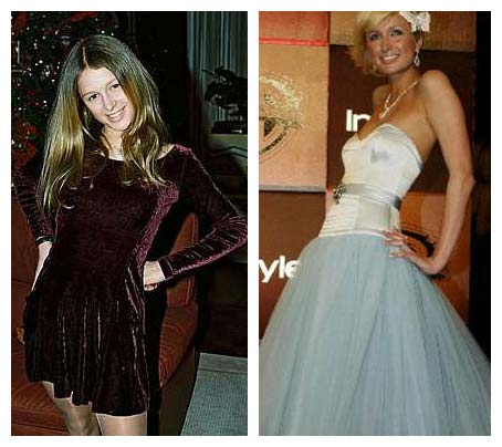 Paris Hilton Plastic Surgery Before and After Photos