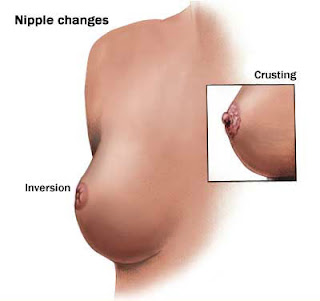 Signs Of Breast Cancer