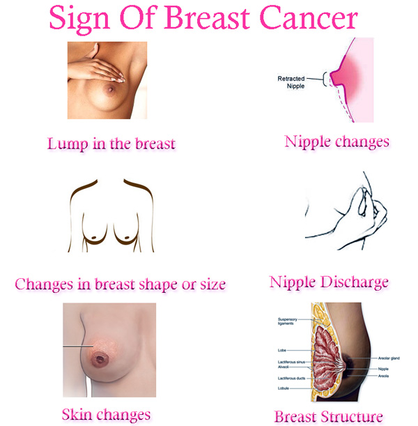 What is a Breast Nodule? with pictures - wiseGEEK